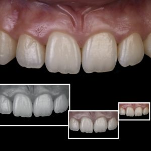 intraoral dental photography