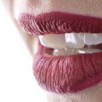 dental photography miladinov milos dentalpromaster .072
