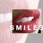 dental photography miladinov milos dentalpromaster .103