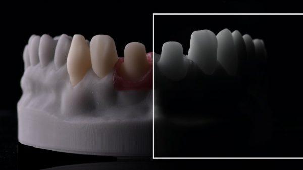 laboratory dental photography