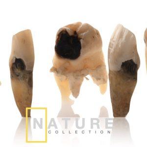 natural teeth dental photography